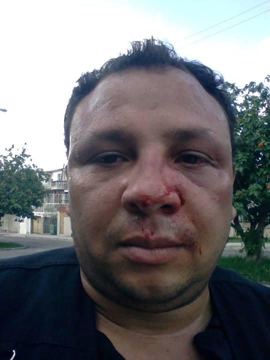 Roberto de Jesús Guerra Pérez, golpeado el 11 de Junio de 2014. Foto cortesía de RDGP.